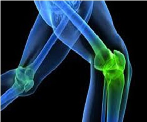 Xray of knee joints - Aging and joint pain blog post
